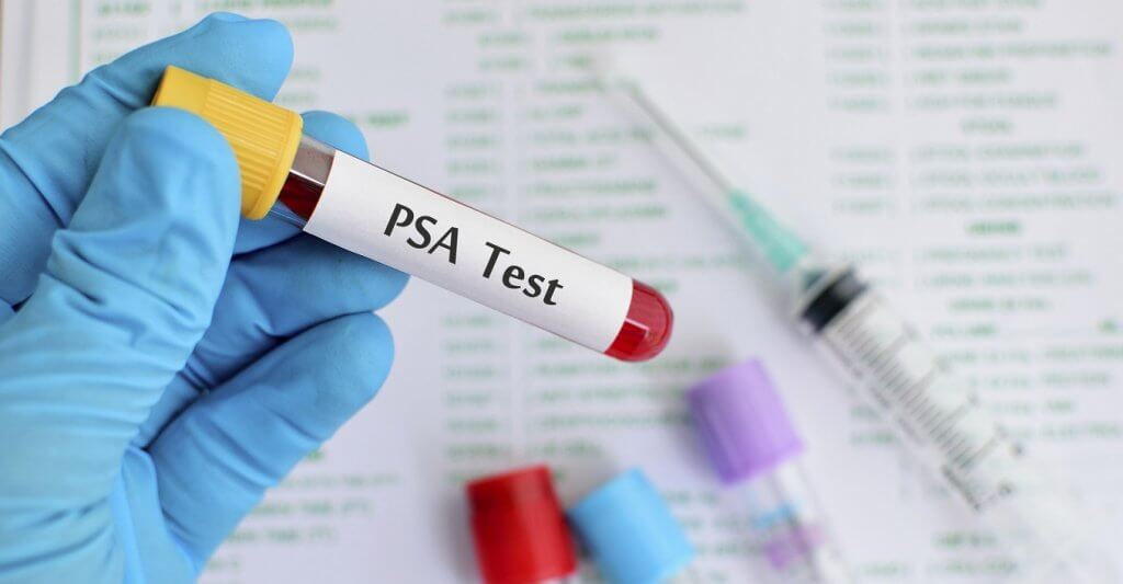Blood sample for PSA (Prostate-specific antigen) testing