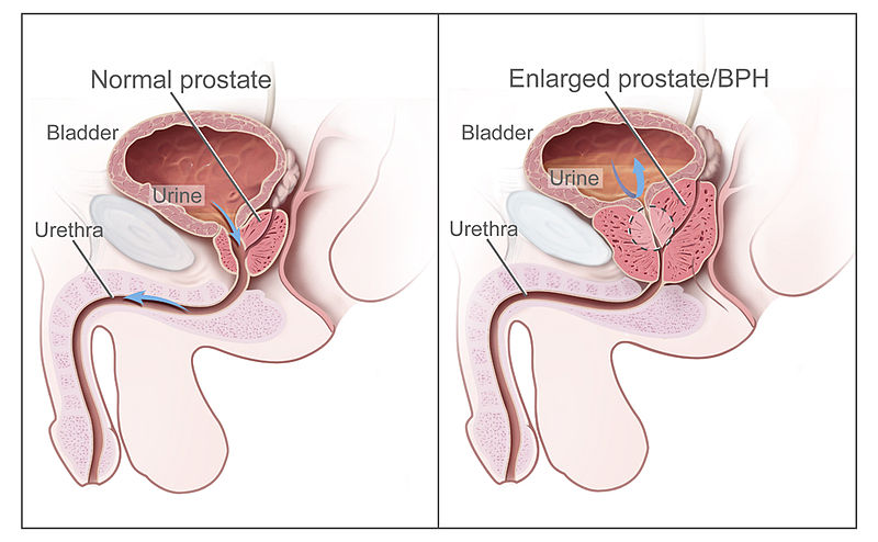 Natural remedies for benign prostatic hyperplasia